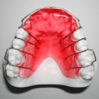 The  Bite Plate Appliance  is a retainer-type appliance that fits closely to the top of your mouth. It is made of acrylic and metal. It can be used before or during braces to open the bite and separate the back teeth, promoting their eruption. In order for it to be effective, the bite plate appliance must be worn 24/7 unless instructed by the doctor. The bite plate is removable.