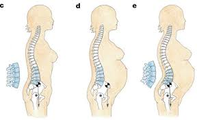 Lordosis and Pregnancy - As the load in front increases, the back body shortens to accommodate. This particularly affects the spine and muscles of the lower back.
