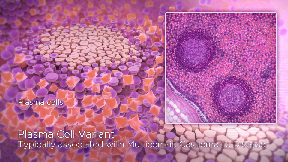 Castleman's_HistologySlide3.jpg