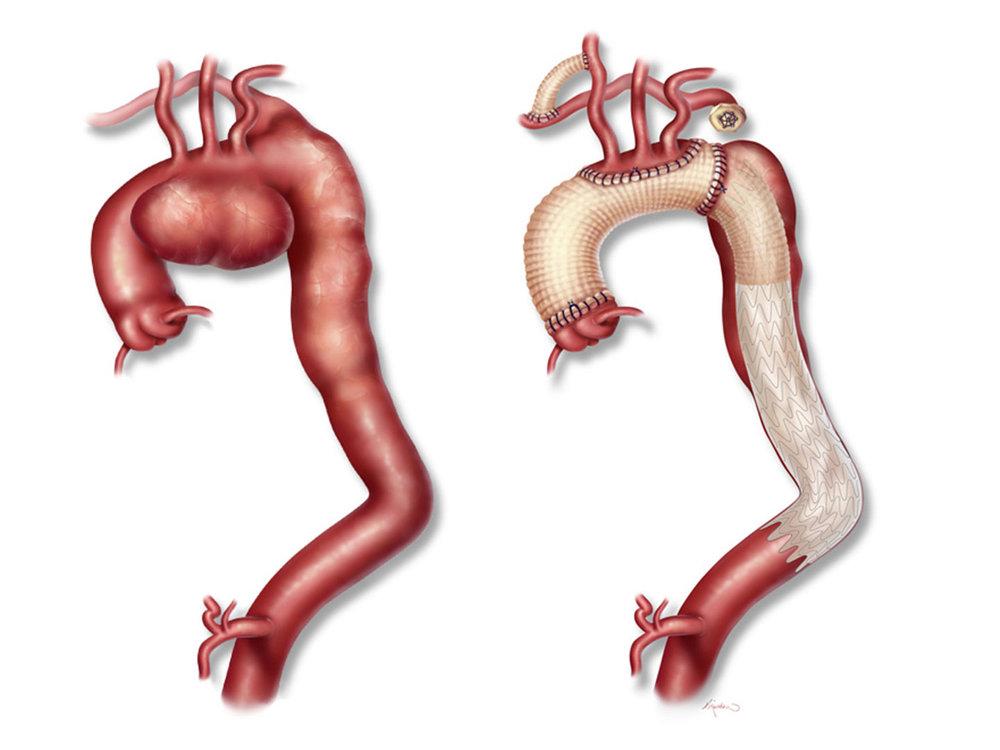 Pre-op and post-op aortic aneurysm