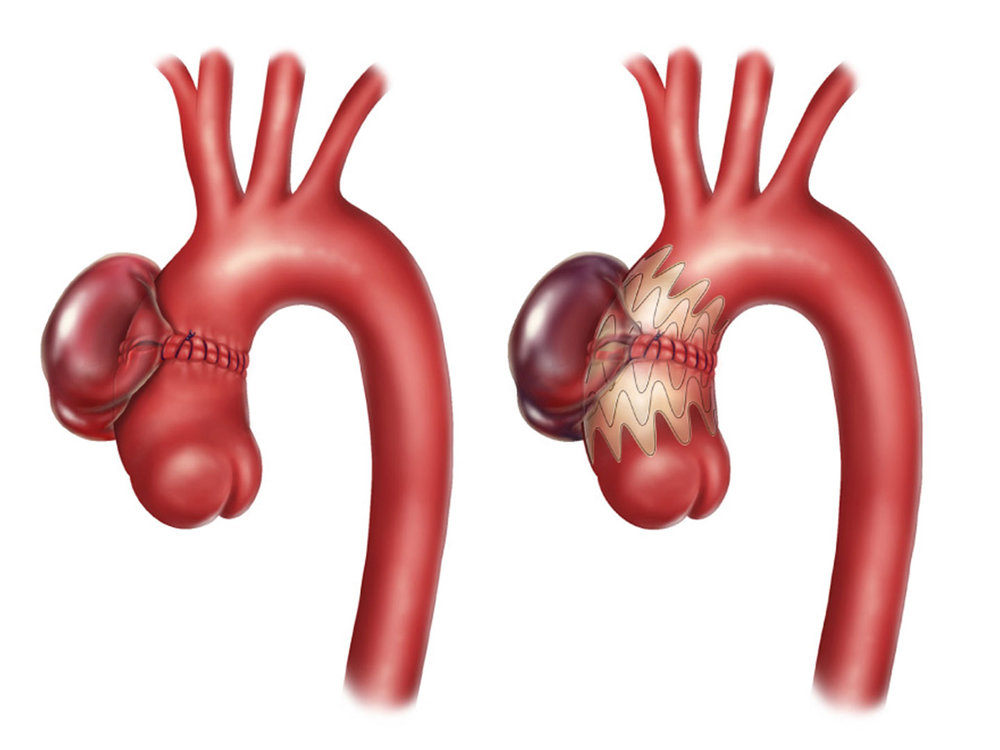 Pseudo-aneurysm pre- and post- operation