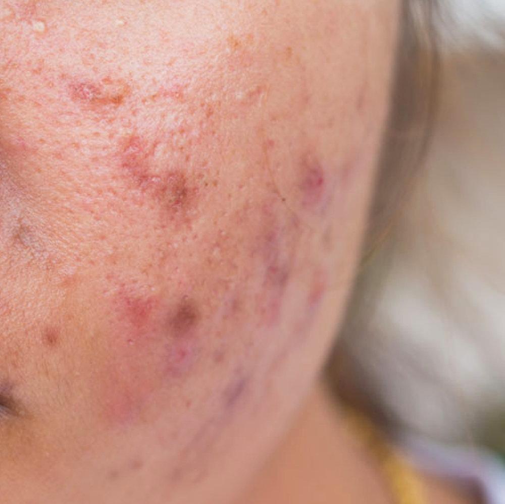 Acne lesions