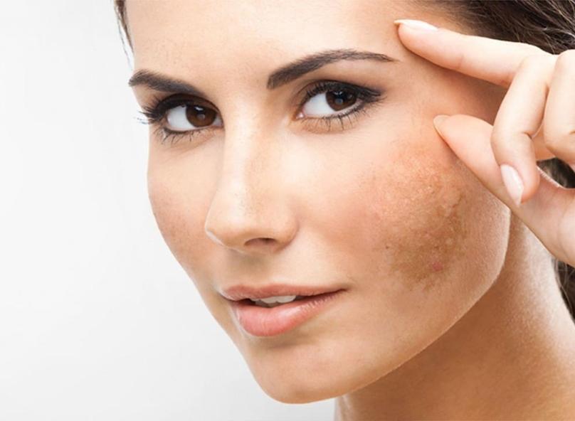 at-risk-skin-melasma1.jpg