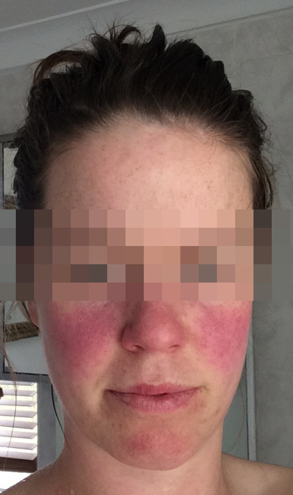 Classic lupus butterfly rash.