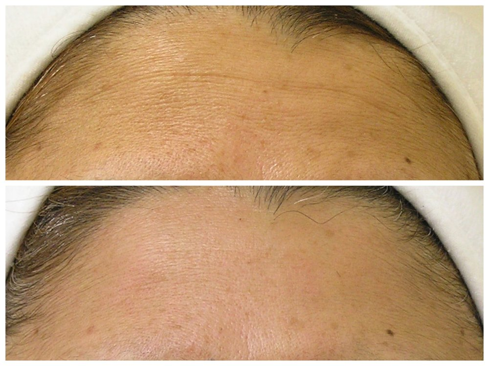 Fine Lines on Forehead B&A1.jpg