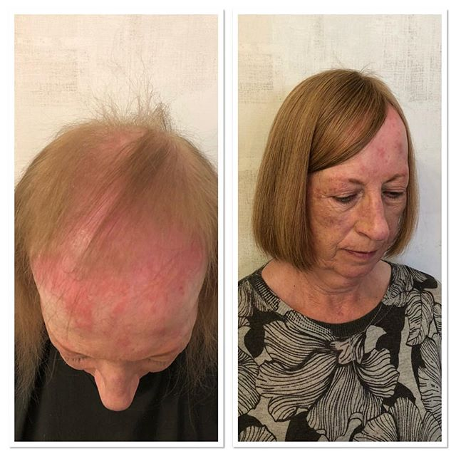 The volumizer  Amazing results from our volumizer system our volumizer systems are very popular as everyone of them are custom made for each individual, the volumizer also achieves volume and adds length ❤️ Here at northern hair loss clinic we offer a number of systems we are here to help if you would like a consultation call now ⬇️⬇️⬇️⬇️ 📞 01422747404 🏠 Ingfield Enterprise Centre Cherry Nook Road  Huddersfield HD21JD 📧info@northernhairlossclinic.co.uk  #northernhairlossclinic  #hairspecialist #intergrationsystem #volumizer  #custommade #indertectable #weareheretohelp #ukhairspecialists #totalhairlosssolutions #chemotherapy #highlytrainededucators #extensioncourse #alopecia #confidence #banburypostiche #evaproudman #trichologist #raptureextensions #integrationsystem #huddersfield #london #uk #leeds #kuwait #dubai #ripponden #liverpool