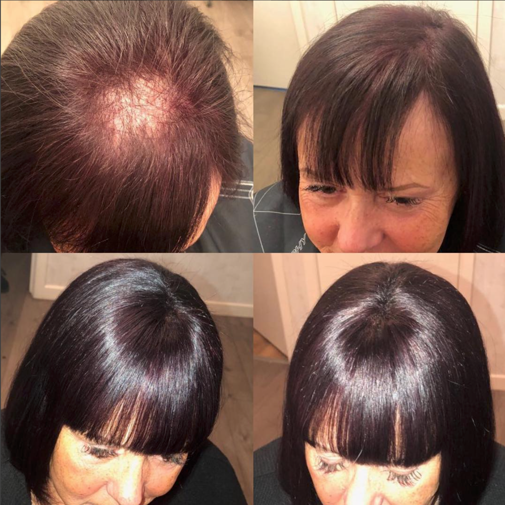 Northern Hair Loss Clinic Before and After