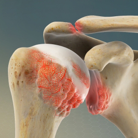 Shoulder/Glenohumeral Arthritis