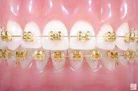 gold braces philadelphia