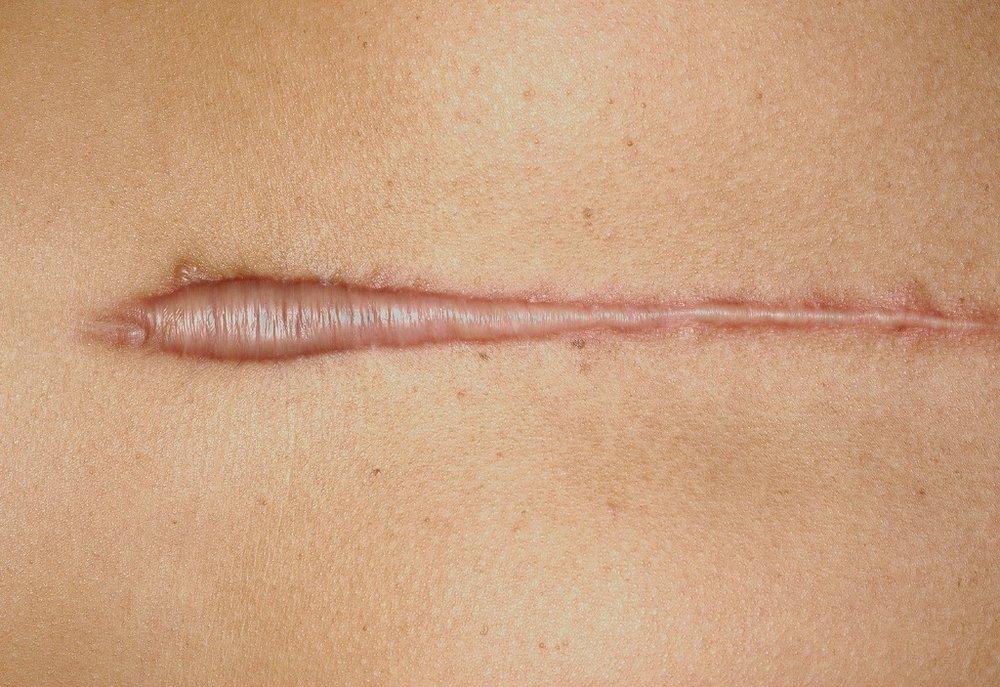a hypertrophic scar