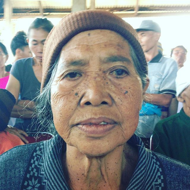 This is Nengah. She lives in a small village in Bali, Indonesia. She developed a cataract in her eye which was severely impairing her vision. Most people like her in the third world don't have access to proper medical care. We have partnered with the John Fawcett Foundation to help people like Nengah. $50 of your purchase of Brownie sunglasses goes to heal one persons blindness. You can make a difference with the sunglasses you choose to wear!