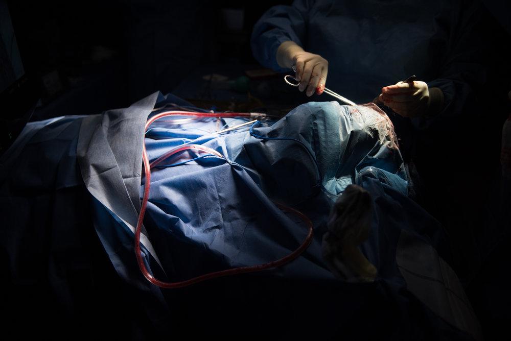 3D_Brain_Surgery_22.jpg
