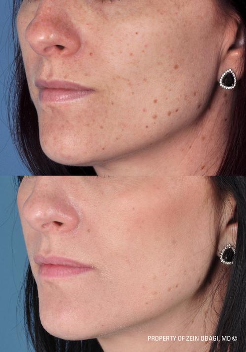 , ZO® Skin Health