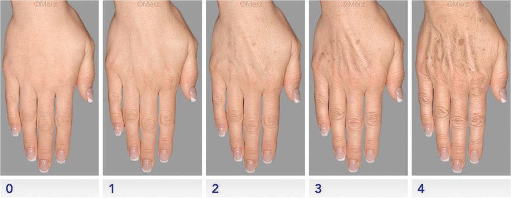 hands14.jpg