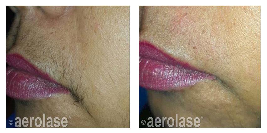 , Laser Hair Revomal
