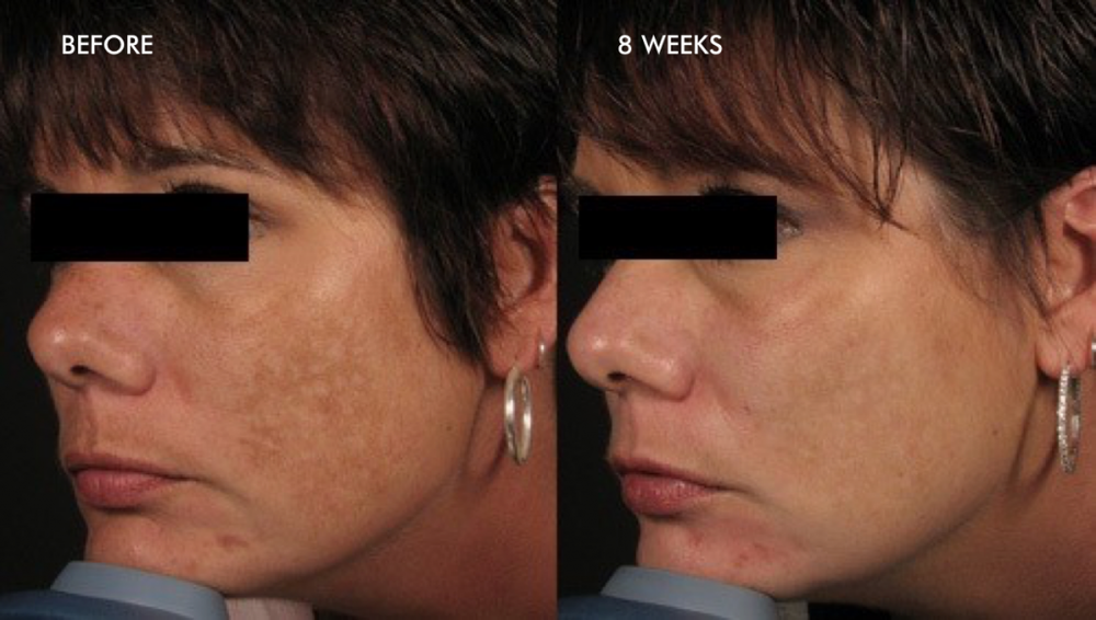 Treatment of Melasma – 5 Dermalinfusion Treatments – Once Every 2 Weeks with Skin Brightening Pro-Infusion Serum with Lumixyl