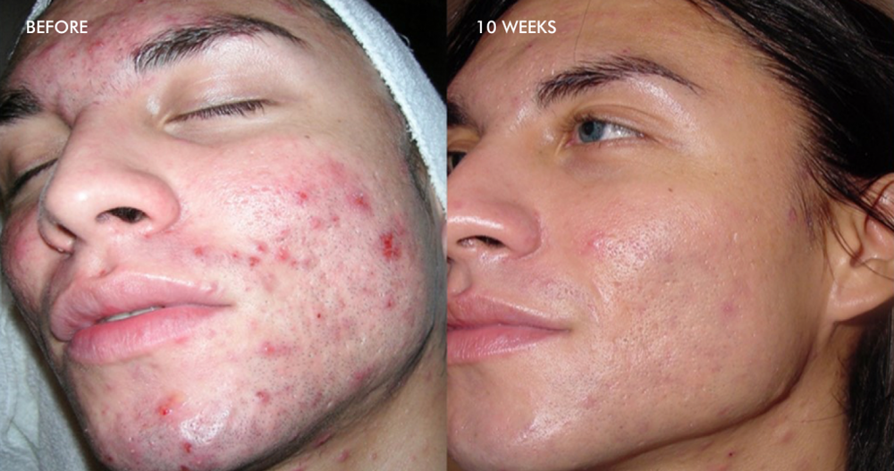 Treatment of Inflammatory Acne – 6 Dermalinfusion Treatments- Once Every Two Weeks with Pore Clarifying Pro-Infusion Serum*