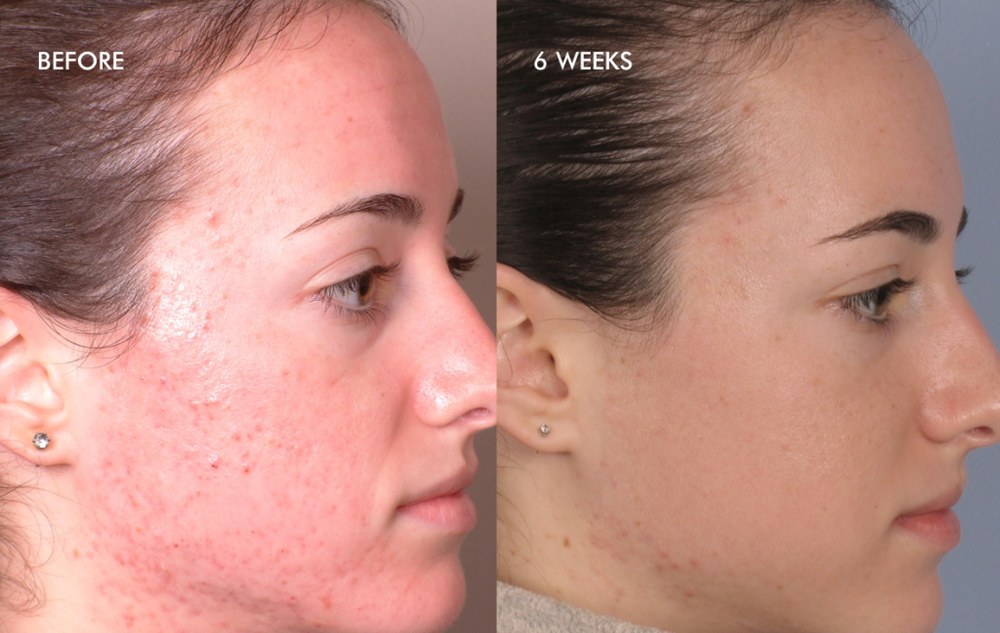 Treatment of Inflammatory Acne – 4 Dermalinfusion Treatments – Once Every Two Weeks with Pore Clarifying Pro-Infusion Serum