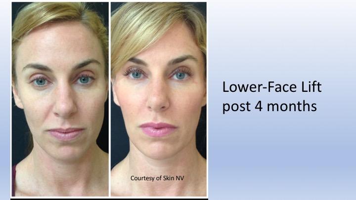 Non Invasive Face Lift Cleveland | PDO Threadlift Cleveland
