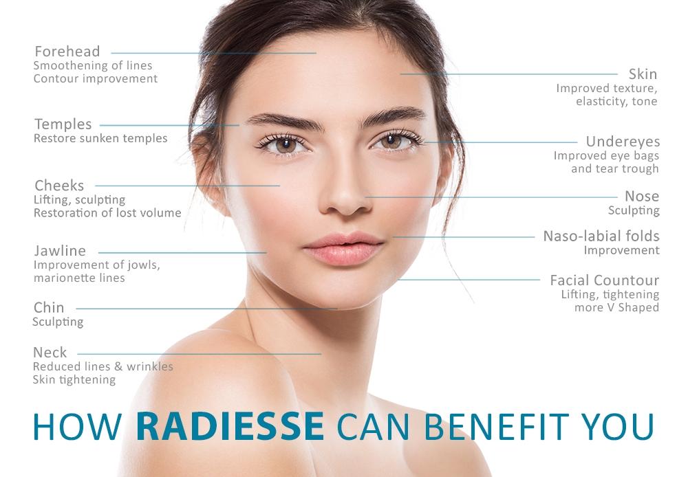 RADIESSE-Fillers-Benefit-Dr-Siew.jpg