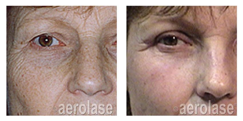 , Laser & Skin