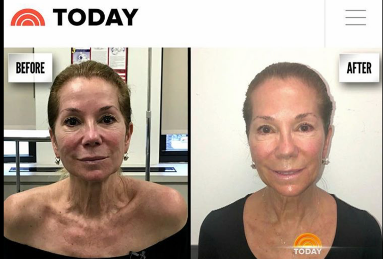 4 Treatments and only 4 weeks apart with our Aerolase NEO laser!