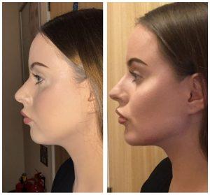 dermal-chin-filler-augmentation-before-after-photo-300x279.jpg
