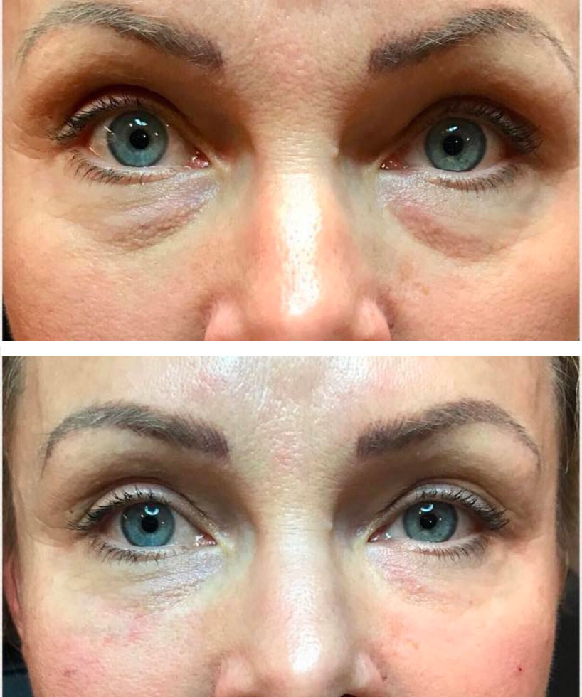 , Tear Trough and Undereye Correction