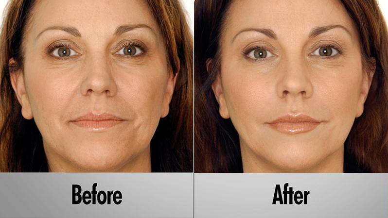 before_after_vampire_facelift2.jpg