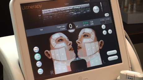 Ultrasound imaging allows doctors to see where the treatment energy will be delivered