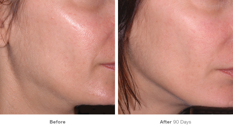 before_after_ultherapy_results_under-chin32.jpg