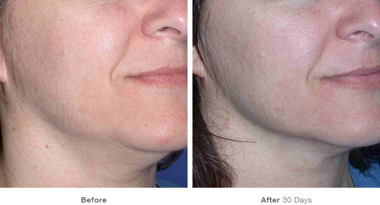 before_after_ultherapy_results_under-chin31.jpg