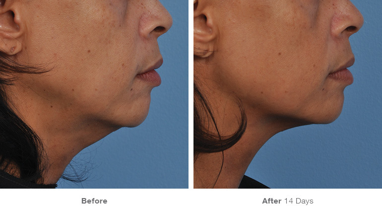 before_after_ultherapy_results_under-chin37.jpg