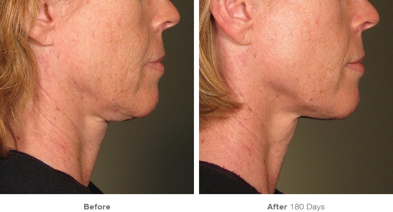 before_after_ultherapy_results_under-chin16.jpg