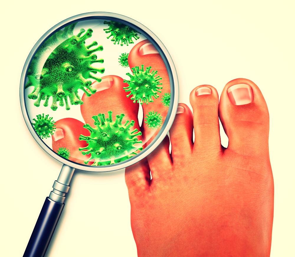 fungal toenail ingrown nail doctor st augustine fl James Militello podiatrist