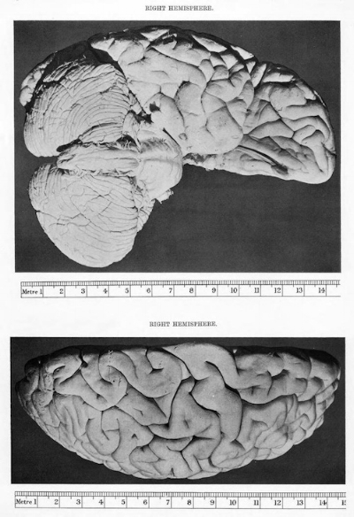"The brain of the ""Father of the Computer,"" Charles Babbage, c. 1909. From the Public Domain Review."