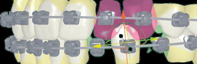 Ortodoncia-Digital-insignia-3D.jpg