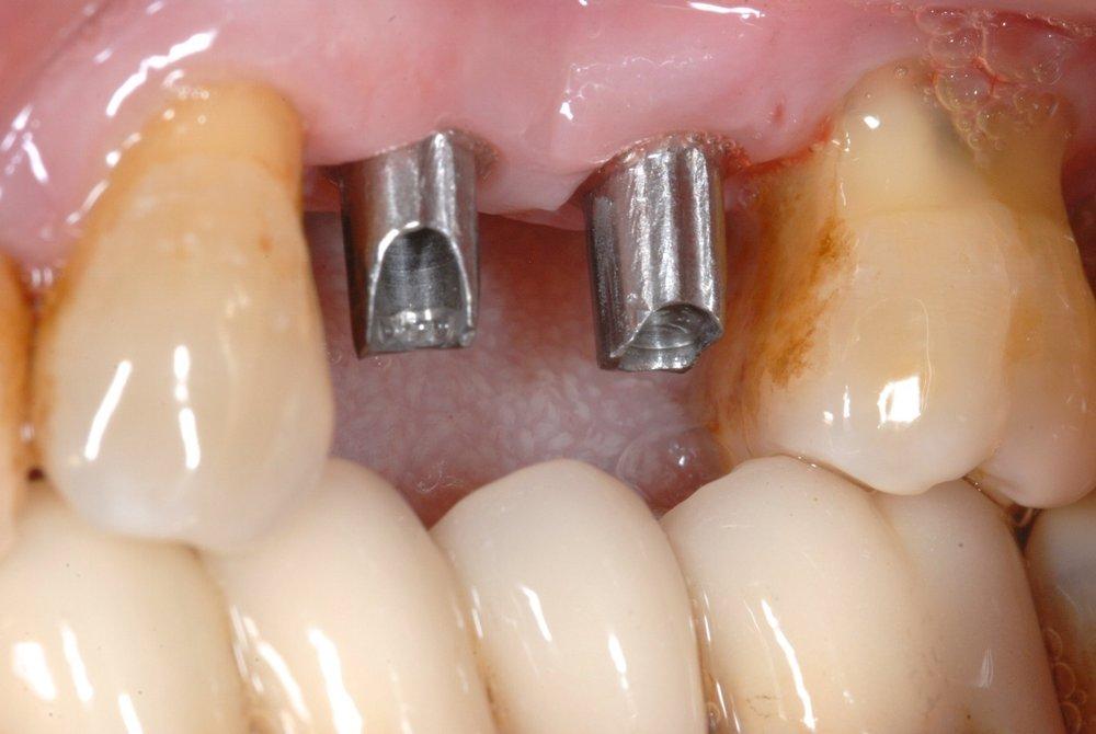 implanteycorona