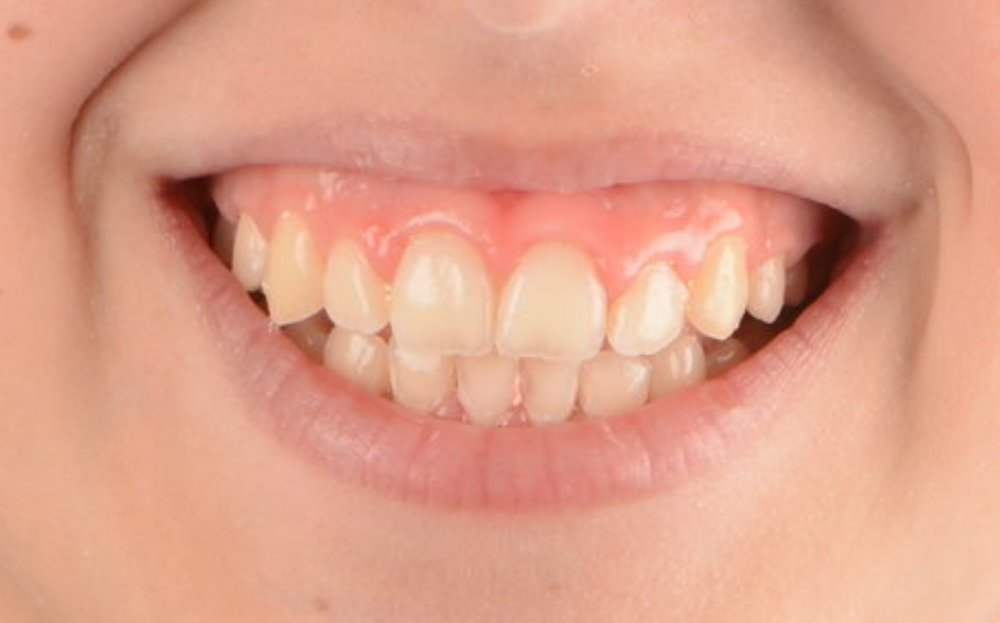 final-ortodoncia