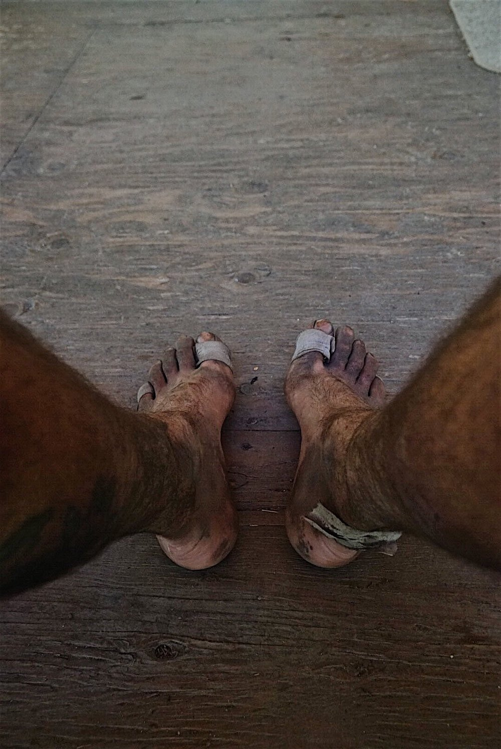 My feet at Benchmark Ranch. Much pain. Many blisters. No fun.