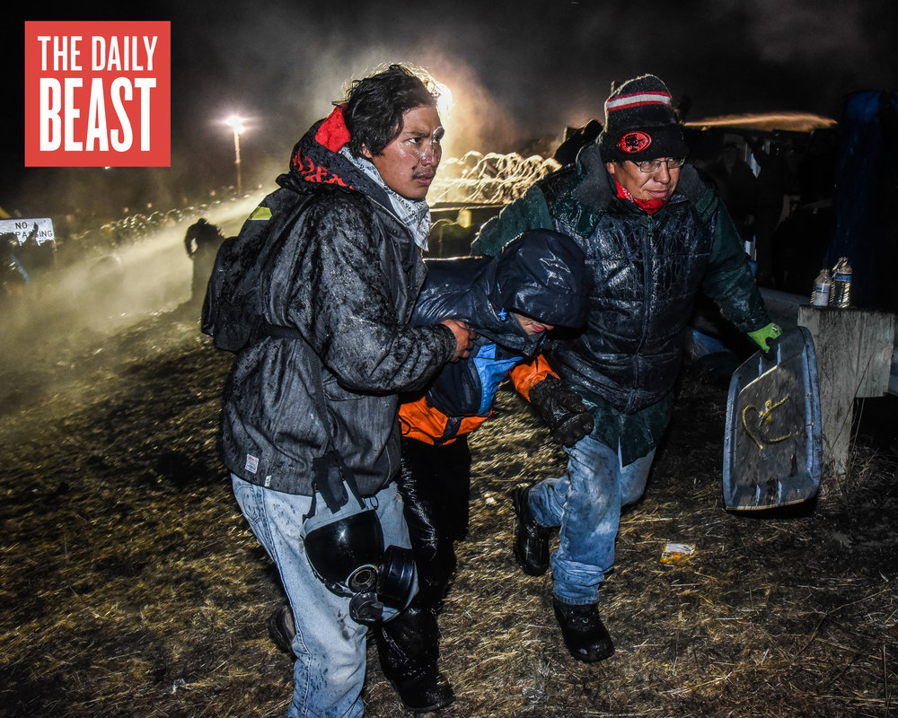 Standing Rock Police Attack Protesters Again: 'He Just Smiled and Shot Both My Kneecaps'