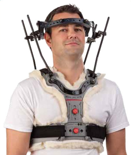 Photograph: Man wearing an orthopedic halo on skull and shoulders.
