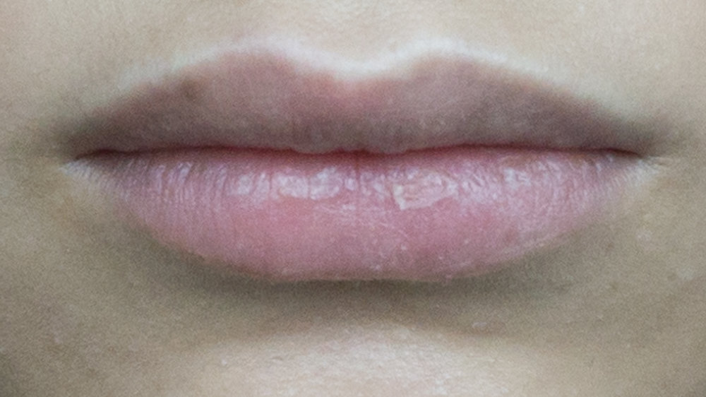 Natural lip colour [ mind the chapped lip ]