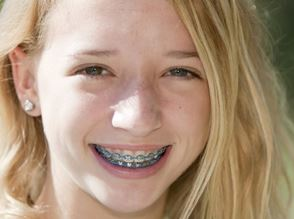Girl w braces.JPG