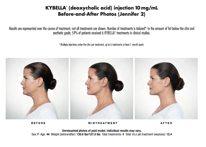 Kybella_Jennifer.png