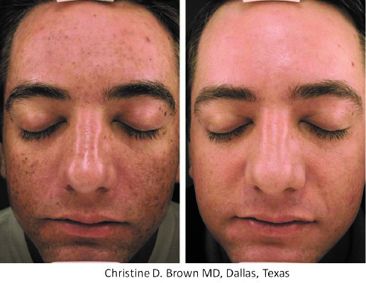 MPElite_BeforeAndAfter_Dr.-Christine-D.-Brown.jpeg