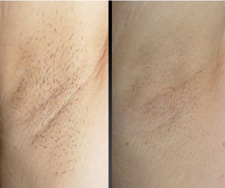 Under Arm Before & After