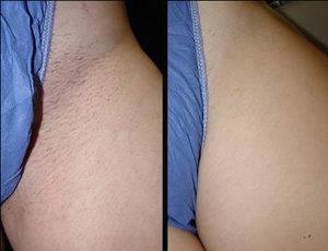 cost-of-laser-hair-removal-bikini-army-women