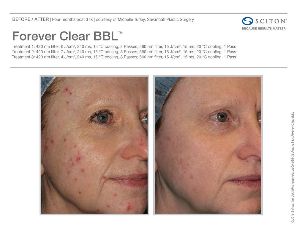 FCBBL B&A Nov'17_Page_2.jpg