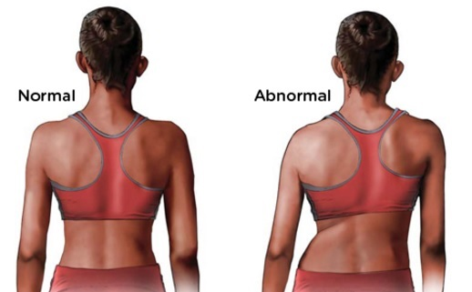 Scoliosis is a medical condition in which a person's spine has a sideways curve